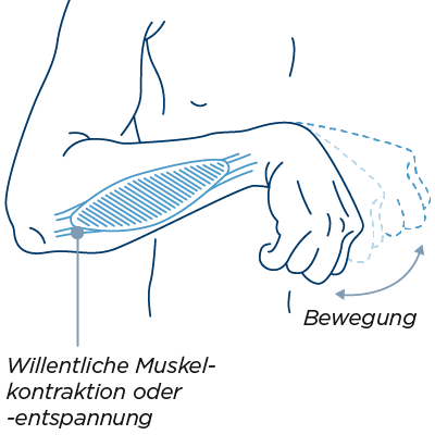 bedeutung schwere hand